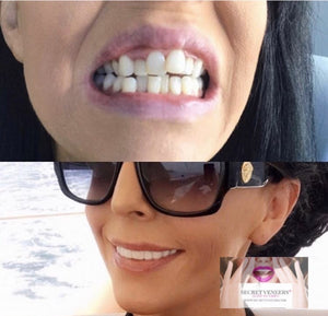 A Single Arch of upper OR lower Clip In Secret Veneers.