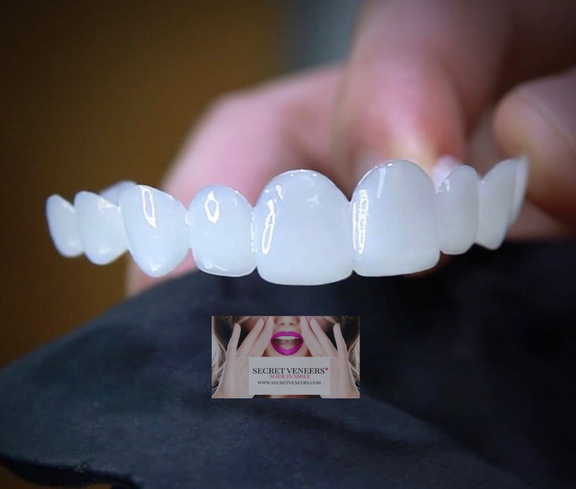 Super thin 0.2mm flexible clip in in veneers; single arch