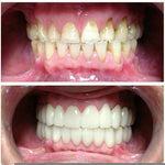 Full Set Of Upper and Lower Clip In Secret Veneers
