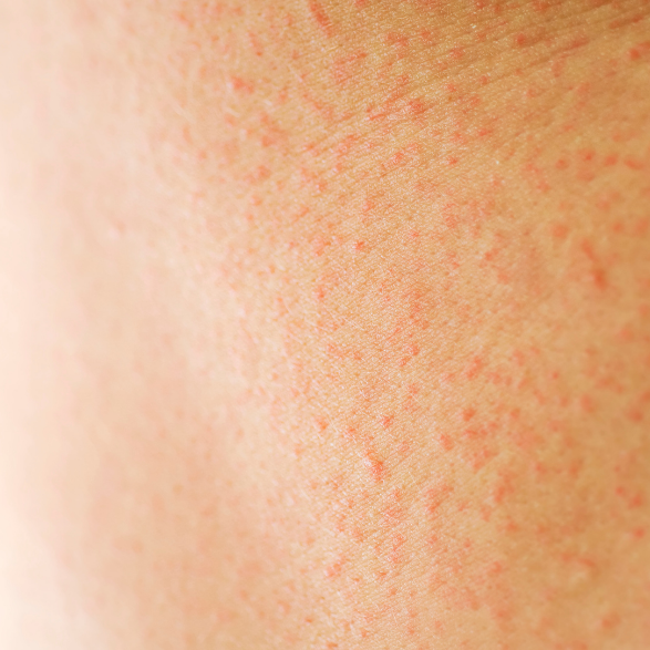 Everything You Need To Know About Contact Dermatitis