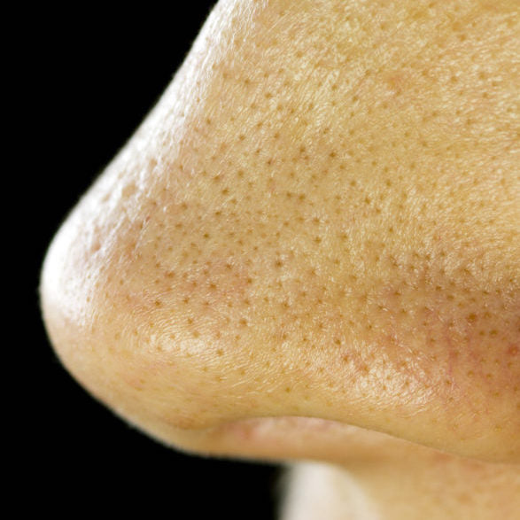 Blackheads vs. Sebaceous Filaments: What's The Difference?