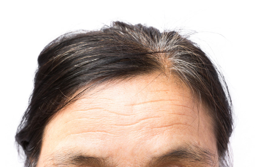 A closeup view of the forehead of a woman in her forties who could benefit from SLMD Dark Spot Fix