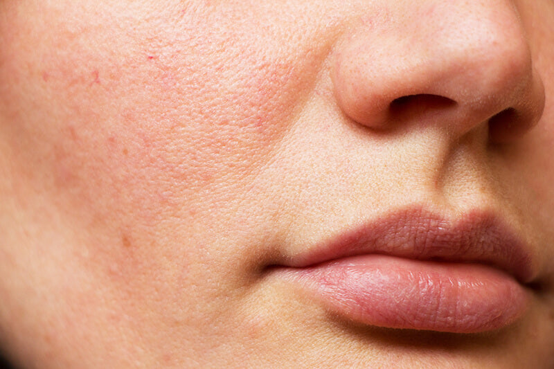 A woman's face and cheek skin that can benefit from glycolic acid treatment