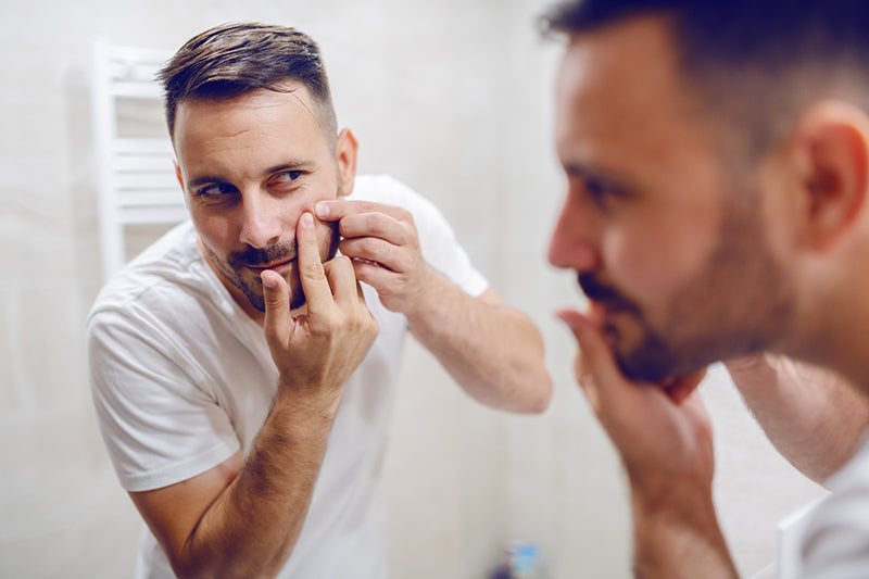 Man popping pimple instead of using salicylic acid Spot Check by SLMD Skincare
