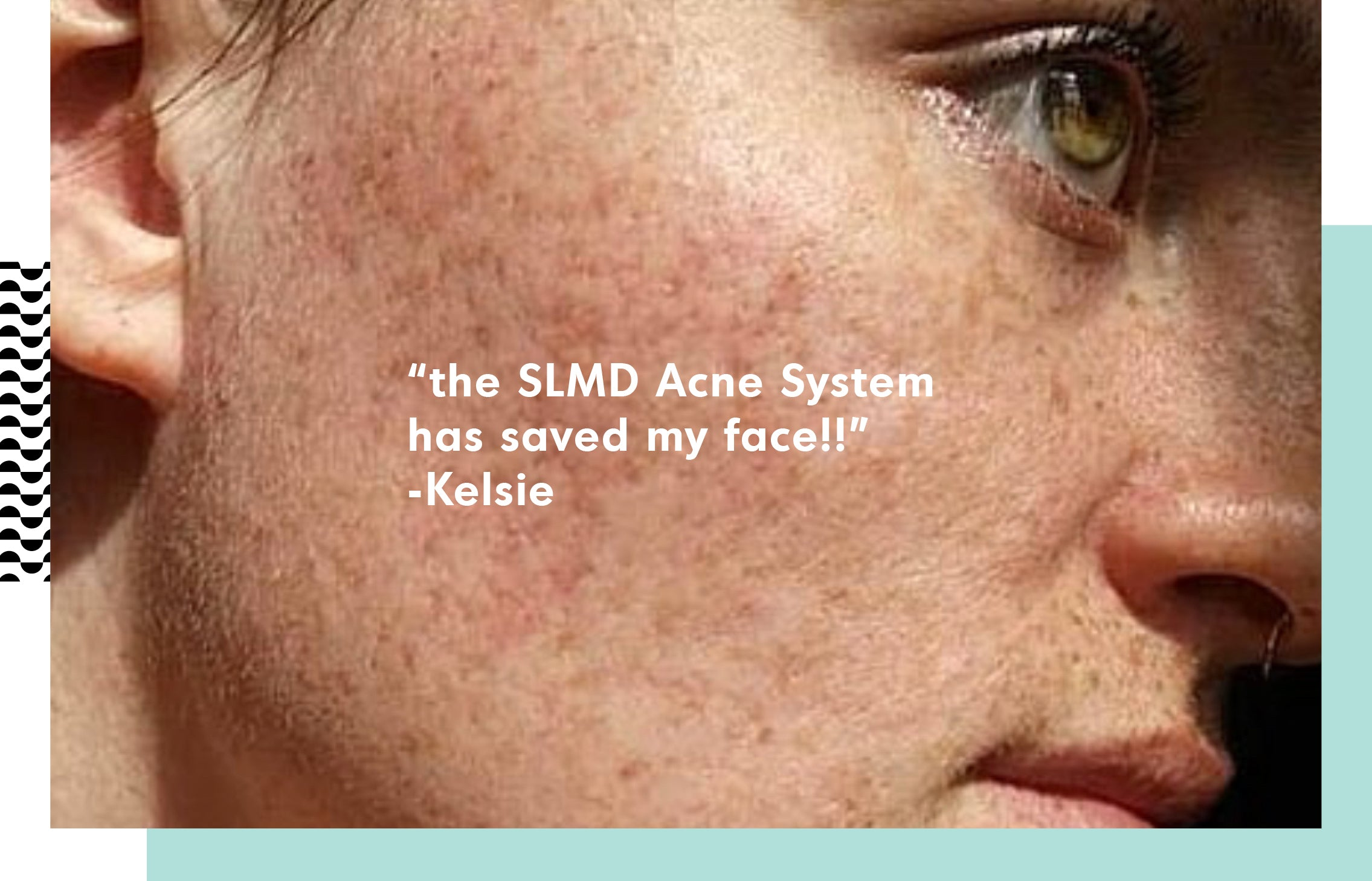 SLMD Skincare: Real Stories