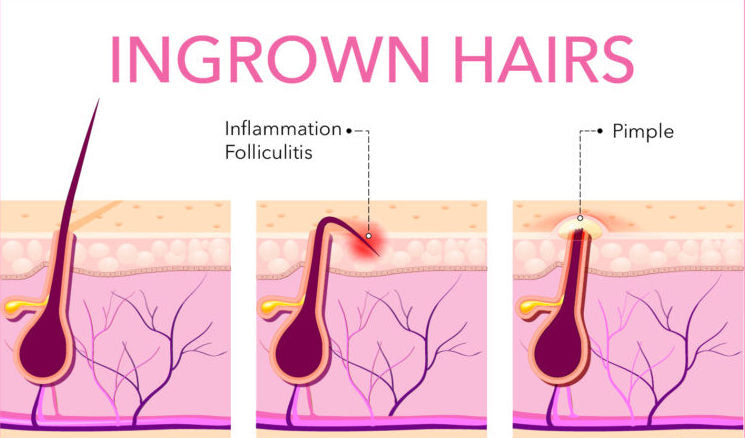 How To Treat Prevent Ingrown Hairs Slmd Skincare By