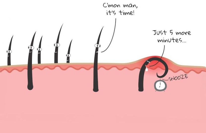 Illustration of an ingrown hair that can be extracted by Dr. Pimple Popper