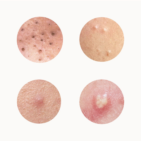 4 types of blemishes treated by Dr. Pimple Popper with Blemish-Prone Skin System by SLMD Skincare