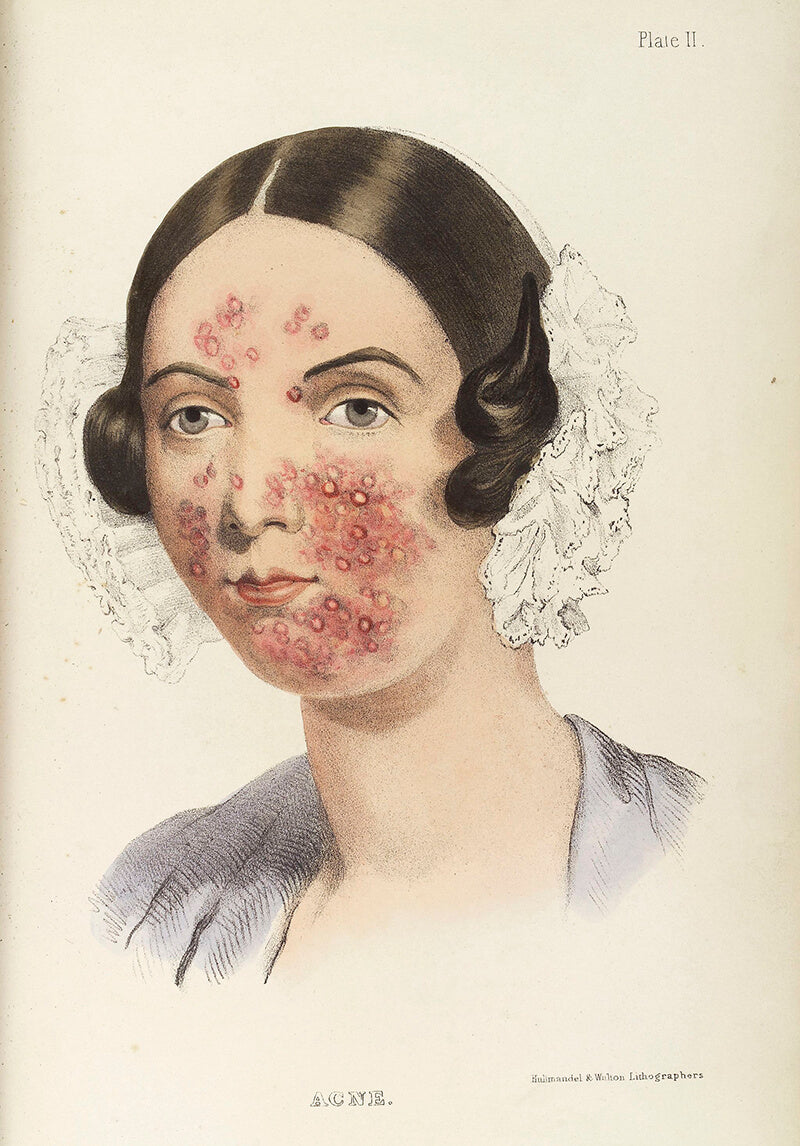 Illustration of a woman from 1800s with acne from TH Burgess