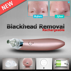 XN-8030 Blackhead Cleanser Vacuum Suction