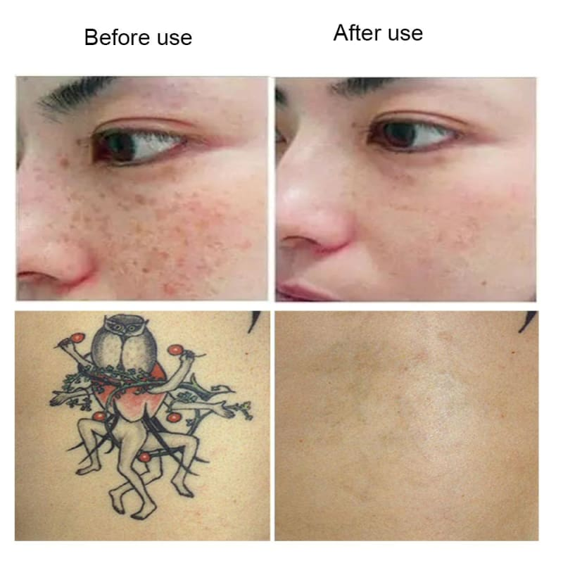 Laser Tattoo Removal Just For You - laser