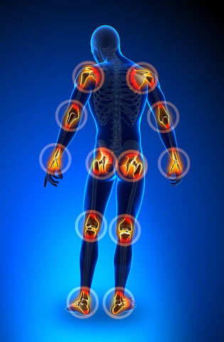 arthritis- joint pain