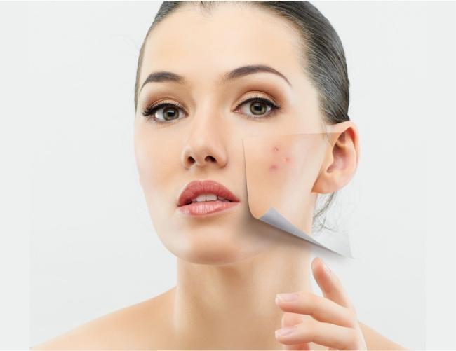 Unique ways of treating Acne | 7E Wellness