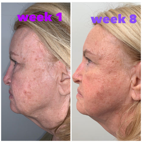 myolift microcurrent progress from skincare by shannon in florida