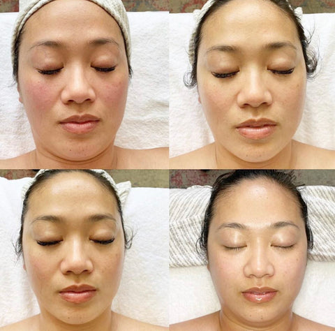microcurrent facial cumulative treatments results