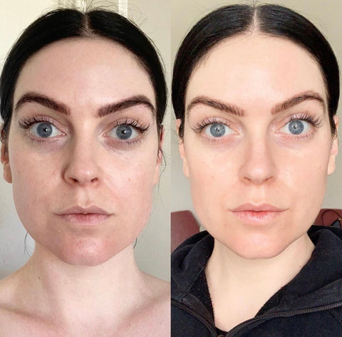 the organic esthetician instagram before and after