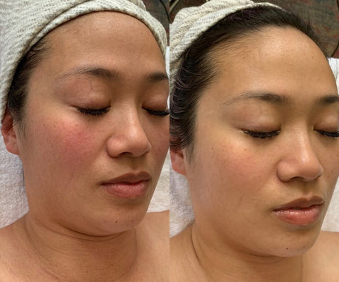 before and after myolift microcurrent facial treatment