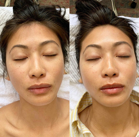 organic esthetician before and after microcurrent for estheticians facial lifting treatment