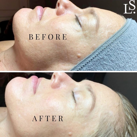 Lisa Sean Skin Care MyoLift Microcurrent for more even skin tone