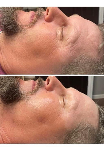 Sheila Hofelich male before and after microcurrent facial