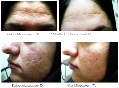 Microcurrent Treatment Before and After Results