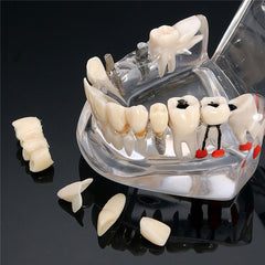 Dental Implant For Medical Science