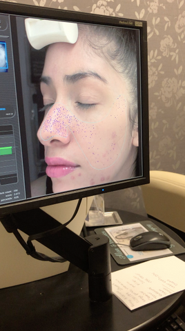Skin Scanner Enlarged Pores