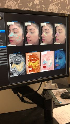 skin analyses by Celeste Ortiz licensed aesthetician