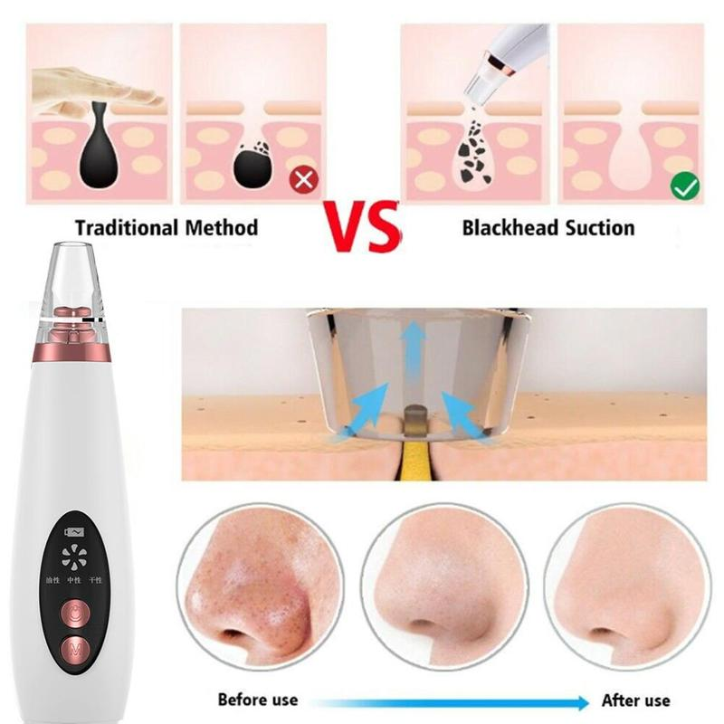 Blackhead Remover Face Pore Vacuum Skin Care Acne Pore Cleaner Tools