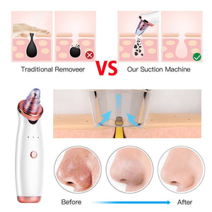 Microdermabrasion Blackhead Remover Vacuum Suction Face Pimple Acne Extractor Skin Care Tool