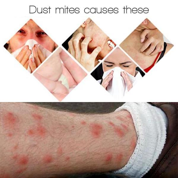 Hilifebox™ Dust Mite Killing Pad