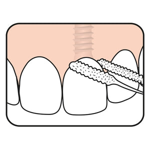 TePe Bridge Implant Floss modo uso