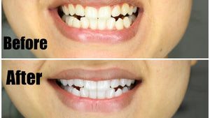 Organic Activated Bamboo Charcoal Teeth Whitening