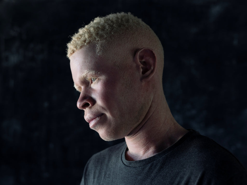 Persecution of Albinos for witchcraft in DRC & Uganda. © Paddy Dowling/EAA