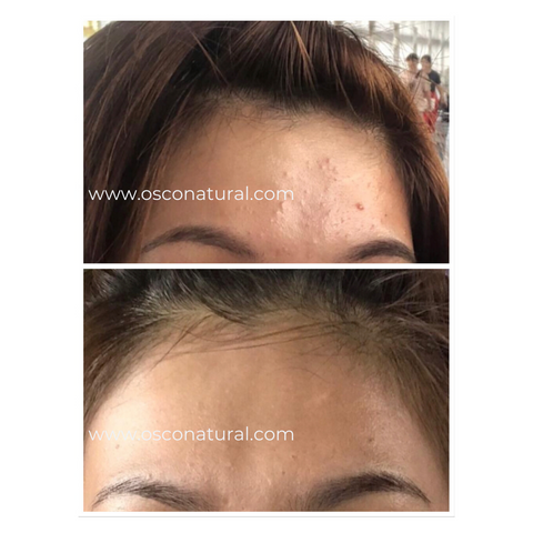 pollution defense serum, osconatural, before and after testimonials, product review, skincare review, reviews