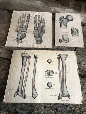 A trio of skeletal medical teaching charts