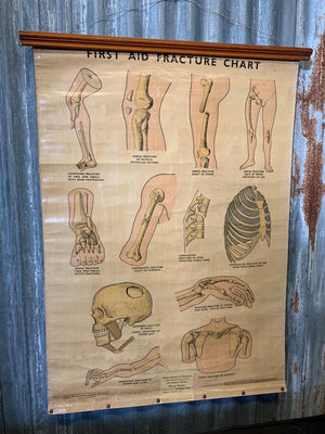 An Adam Rouilly anatomical bone fracture wall chart