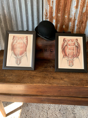 A pair of anatomical antiquarian bookplates of dissection- Brodie, Highley and Berjeau
