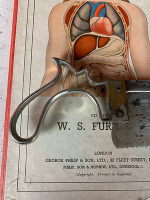 A Weiss and Son of London surgeon's medical amputation saw