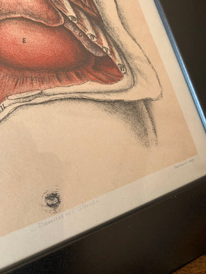A set of 3 anatomical antiquarian bookplates of dissection- Brodie, Highley and Berjeau