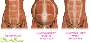 The Serious Injury No One is Talking About: Diastasis Recti