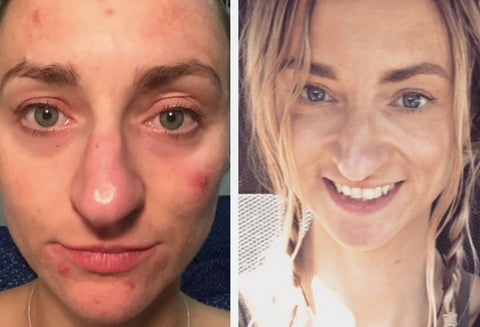 How Natural Skincare Helped Clear Up My Adult Acne