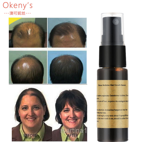 Organic Hair Growth Essence Liquid - Anti Gray Hair Spray Shampoo
