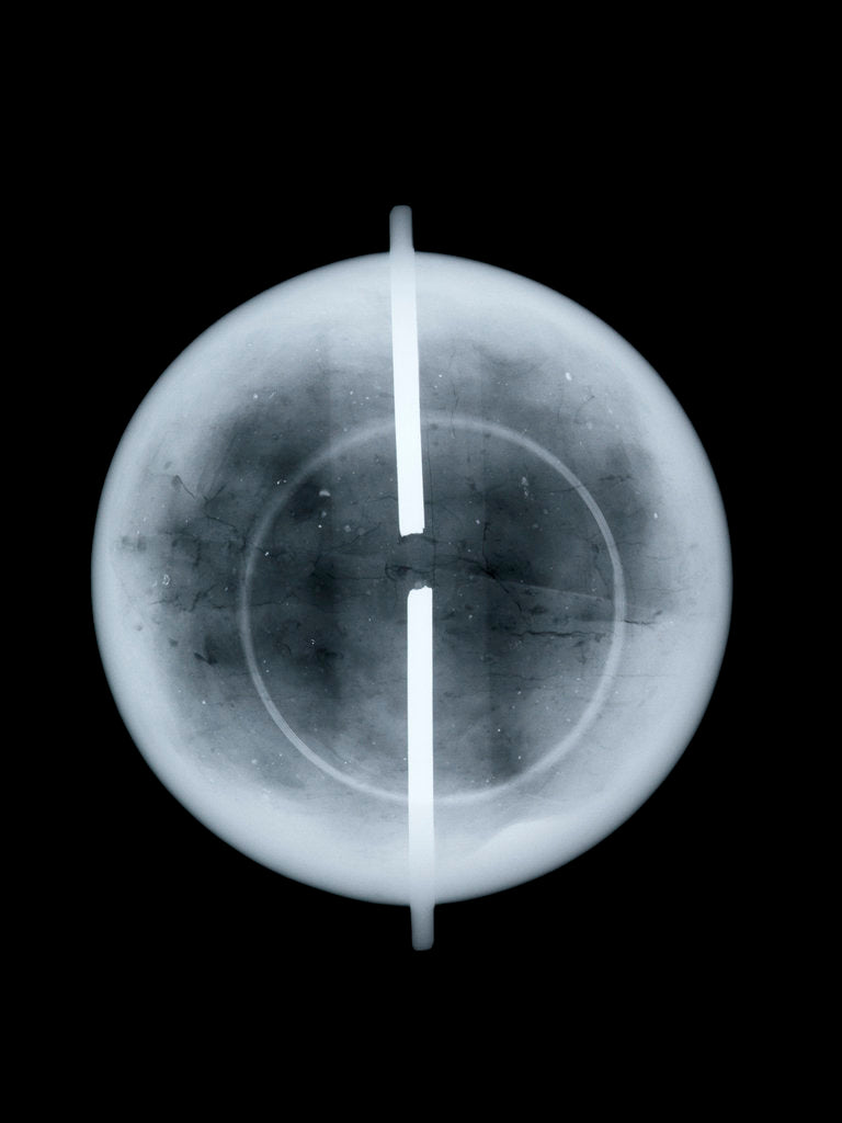 Globe x-ray by West