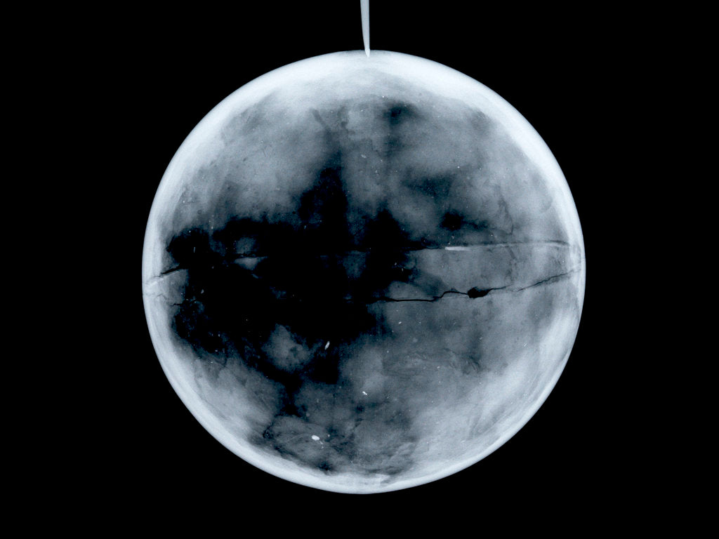 Detail of Globe x-ray by James Ferguson