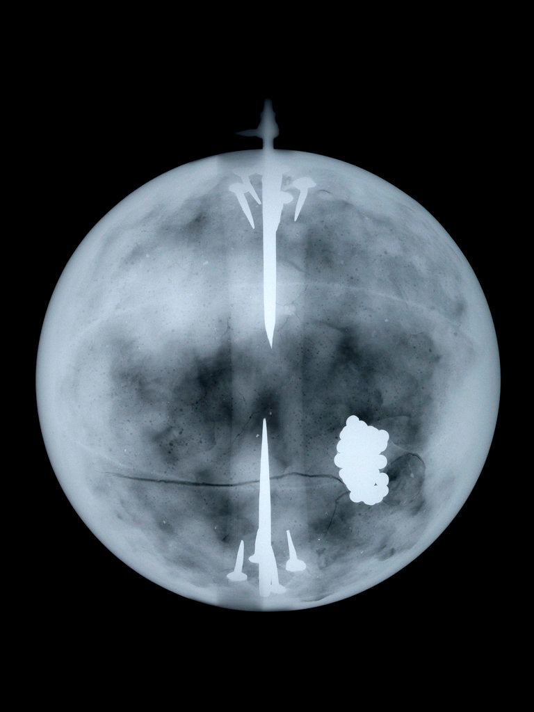 Globe x-ray by Nathaniel Hill
