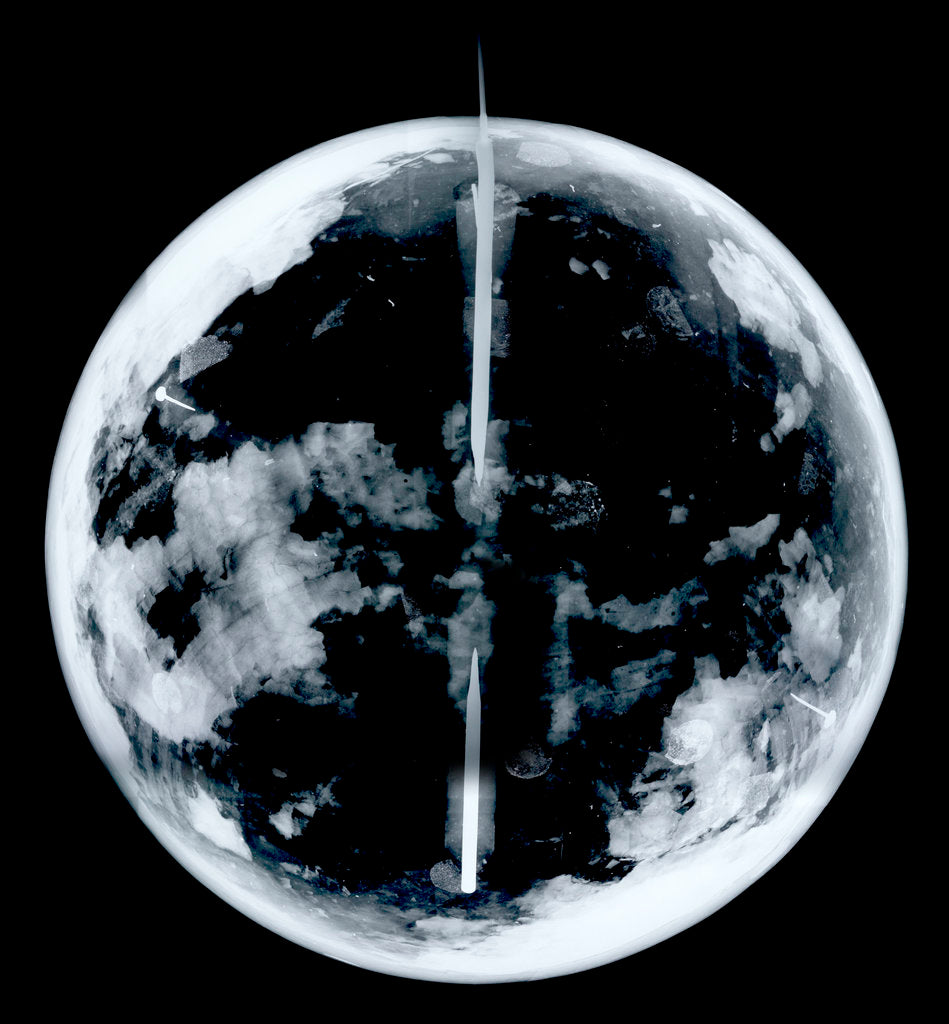 Detail of Globe x-ray by unknown
