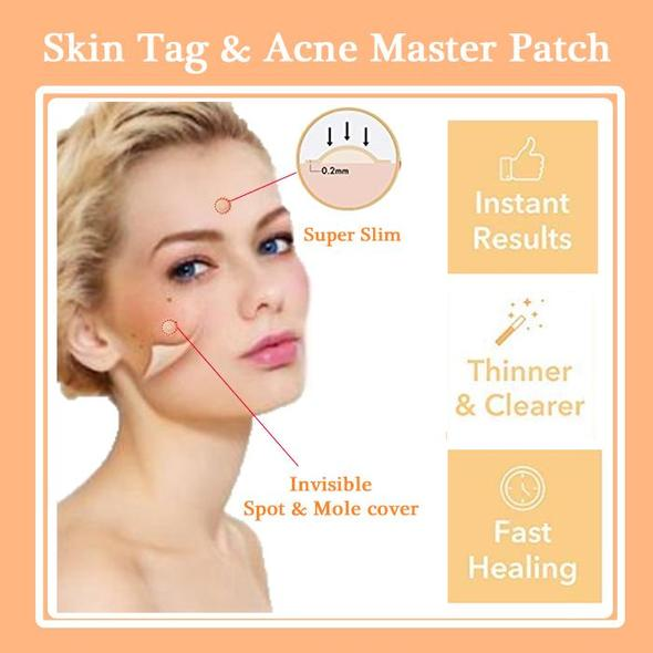 Skin Tag and Acne Master Patch (36 pcs)