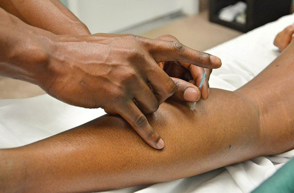 Acupuncture For Tennis Elbow, Can It Help?