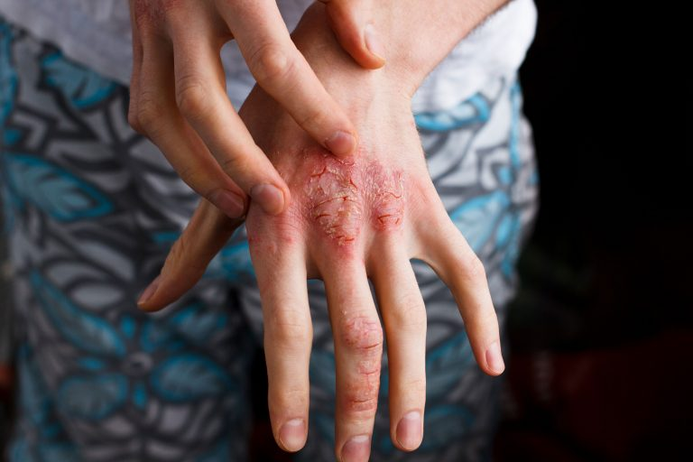 A compound derived from immune cells is being tested to treat psoriasis